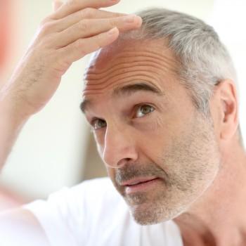 homem-transplante-capilar-cabelo-calvicie-meia-idade
