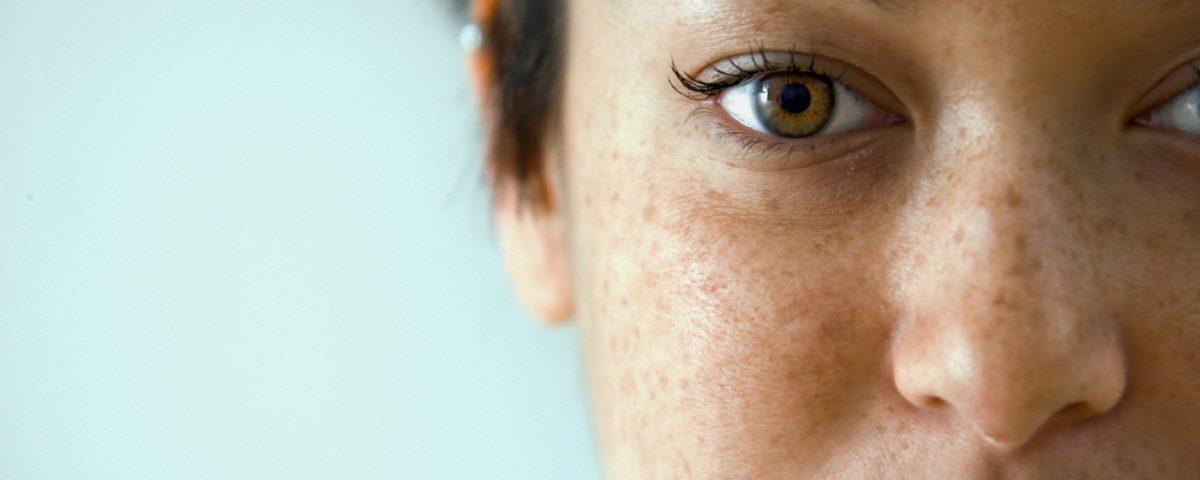 c7dc8ce8cba36 Atenção à manchas na pele  conheça os tipos e saiba como evitá-las ...